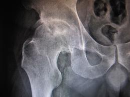 Paciente de 19 años. Prótesis total de ambas caderas. Prótesis total de ambas rodillas